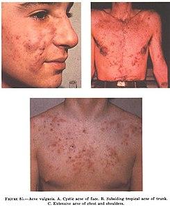 La dermatologie lhistoire de la maladie leczéma chronique