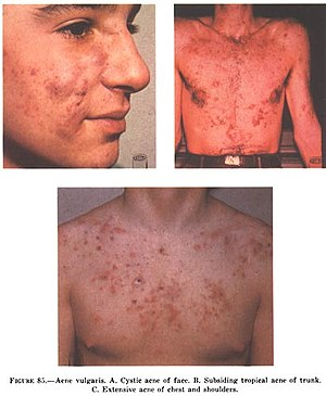 Acne Vulgaris: A: Cystic acne on the face, B: ...