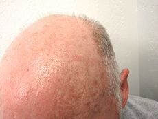 Common presentation of actinic keratosis on a balding head.