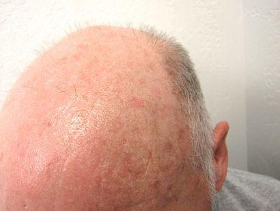 Actinic keratosis on balding head.JPG
