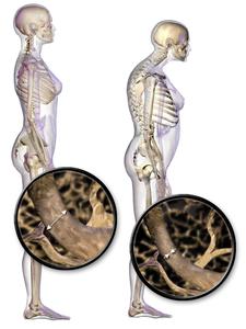 Typické držení těla u osteoportických pacientů.