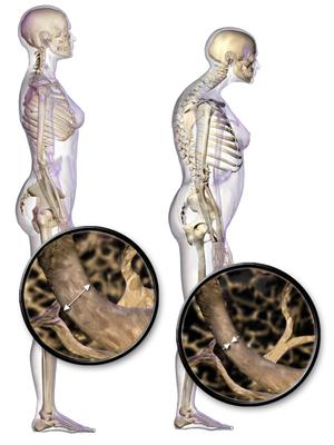 Anorexia y perdida de peso en el adulto mayor