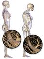 Blausen 0686 Osteoporosis 01.png