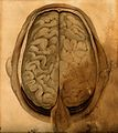 Brain; dissection showing the gyri, seen from above. Waterco Wellcome V0008418.jpg
