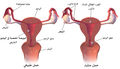 Ectopic Pregnancy-ar.png