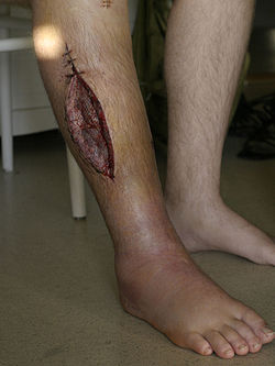 Fasciotomy leg.jpg