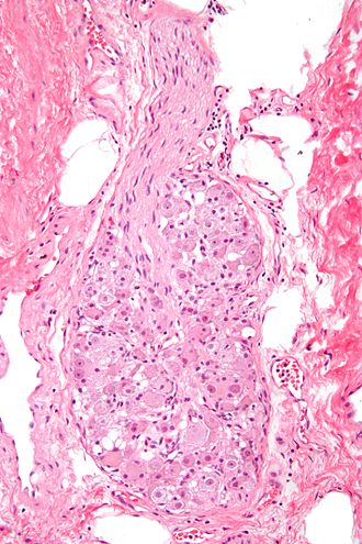 Ganglion - Micrograph of a ganglion. H&E stain.