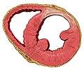 Heart ant wall scar sa.jpg