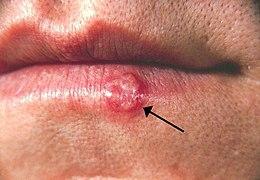 Különbség a hpv vírus és a herpesz között