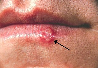 Herpes labialis Herpes simplex virus that primarily affects the lip
