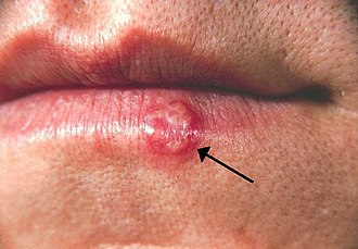 Irritation - Herpes simplex lesion of lower lip, second day after onset