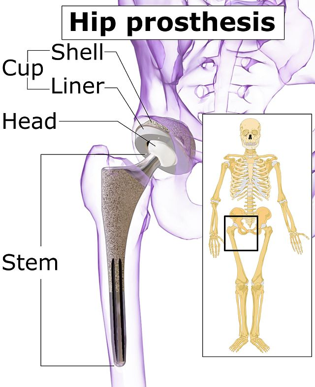 Hip replacement - Wikiwand