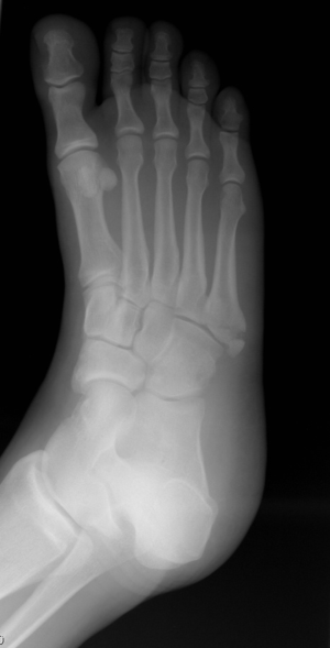 A fracture of the fifth metatarsal of the foot...