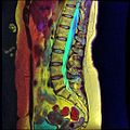 LSV MRI T1FSE T2frFSE STIR Case04 06.jpg