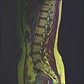 Lumbosacral MRI case 13 09.jpg