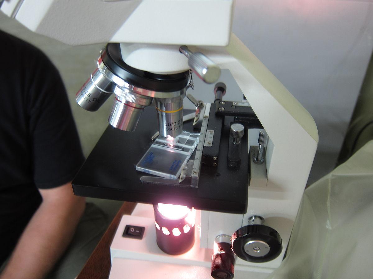 Что показывает клинический анализ крови формула thumbnail