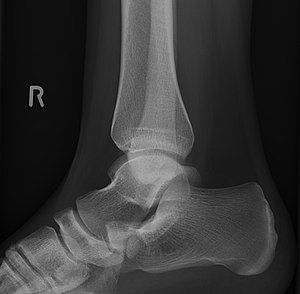 Accessory navicular bone - Image: Os naviculare accesorium