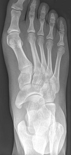Accessory navicular bone - Image: Os naviculare cornutum Roe 001