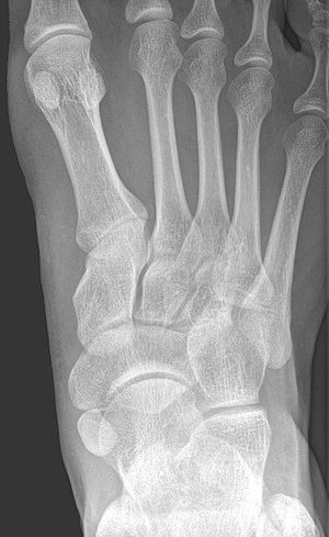 Accessory navicular bone - X-ray of the foot showing an accessory navicular bone