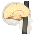 Phineas Gage injury - medial view.png
