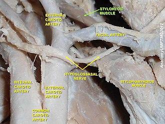 Stylohyoid muscle - Image: Slide 6aaa