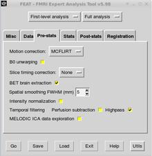 Neuroimaging Data Processing/Temporal Filtering - Wikibooks