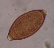 Trichocephalosis felnőtteknél - oraoazis.hu