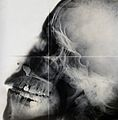 X-ray, skull Wellcome V0030081.jpg