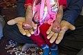 بیماری پروانه ای یا بیماری ای بی در کودکان مناطق محروم جنوب کرمان- ایران 04.jpg