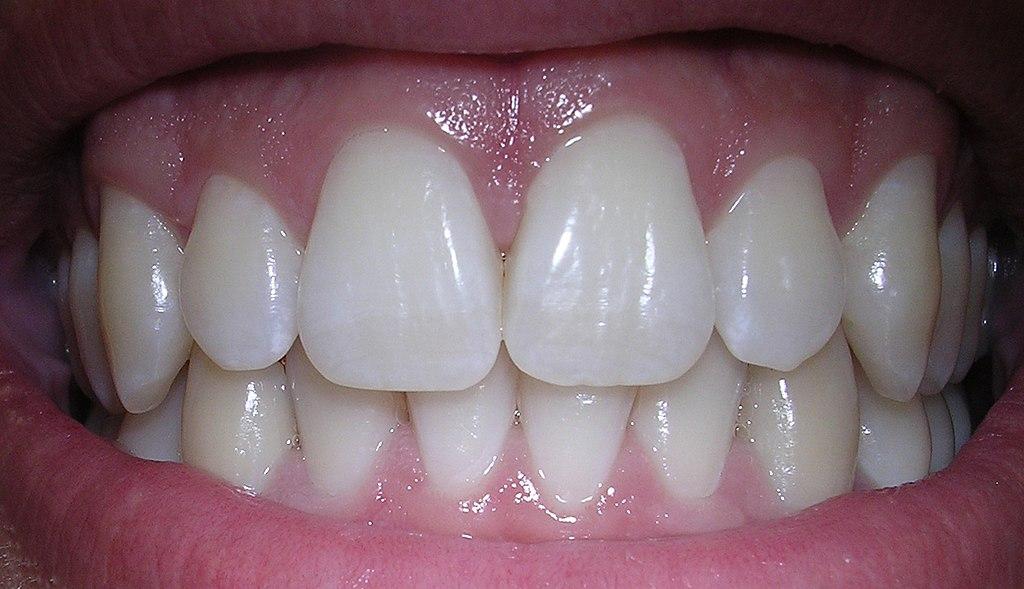 zęby, ortodonta Warszawa
