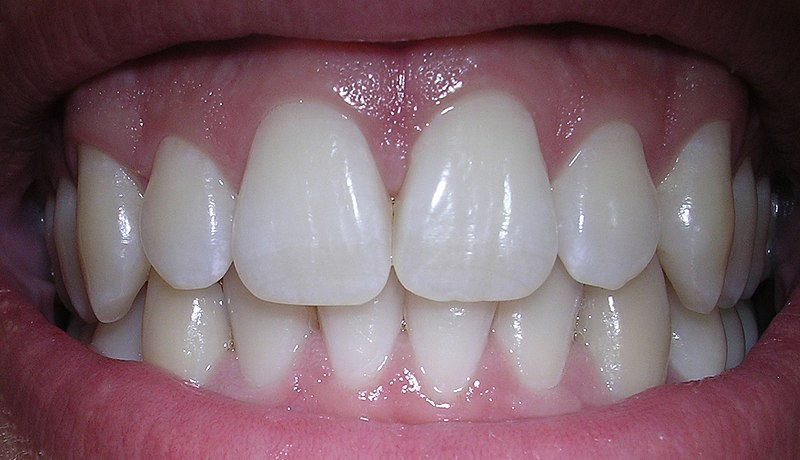 Dentist Libertyville Review Talks about the best whitening products