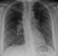 AP X-ray of sarcoidosis.png