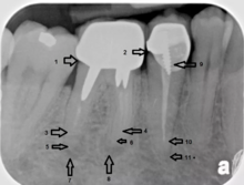 An X-ray explanation of bad root canal therapy