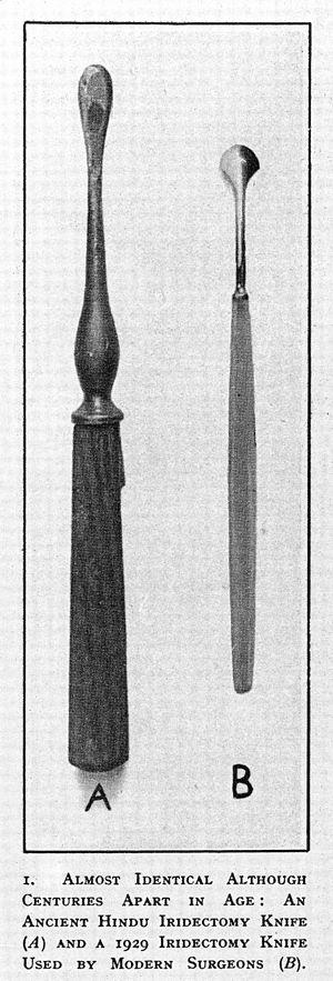 Iridectomy - Ancient Hindu iridectomy and a modern knives