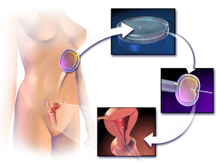 In vitro fertilisation Assisted reproductive technology procedure