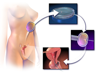 In vitro fertilisation - Image: Blausen 0060 Assisted Reproductive Technology