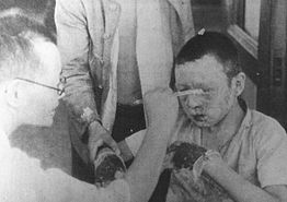 Boy being treated for burns of the face and hands in Hiroshima Red Cross Hospital.jpg