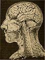 Brain surgery (1893) (14781134142).jpg
