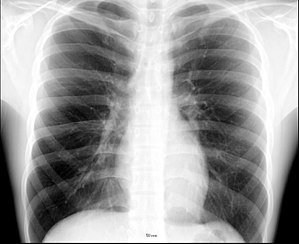 Thorax - X-ray image of the chest showing the internal anatomy of the rib cage, lungs and heart as well as the inferior thoracic border–made up of the diaphragm.