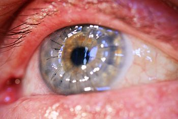 English: Corneal transplant 2 weeks after surg...