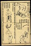 Early C20 Chinese Lithograph; 'Fan' diseases Wellcome L0039472.jpg