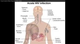 Dosya: En.Wikipedia-VideoWiki-HIV-AIDS.webm