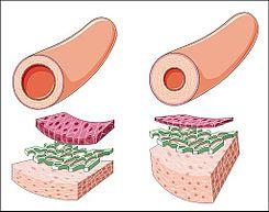 El hipotiroidismo conduce a hipertensión