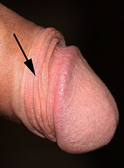 Foreskin of intact penis showing ridged band with arrow.jpg