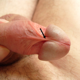 członek operacji penisa