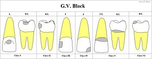 Dental restoration - GV Black Classification of Restorations