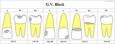 Сложные кариозные полости реферат 6873