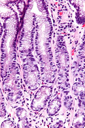 G cell - Micrograph of the gastric antrum showing abundant fried egg-like G cells. H&E stain.