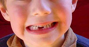 baby tooth by 50 eld old