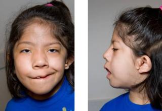 Goldenhar syndrome Medical condition